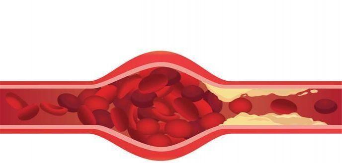 胸痛是心绞痛吗?这四个不同之处,很多人都误解了。