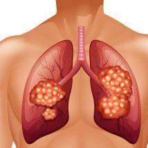 如何早期筛查肺癌?谁需要每年做胸部电脑断层扫描?医生告诉你答案。