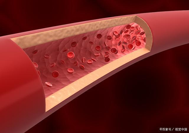 血管阻塞,很多健康问题或者上门,对血管无益的坏习惯要尽快改掉。